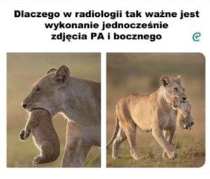 Błąd radiologa