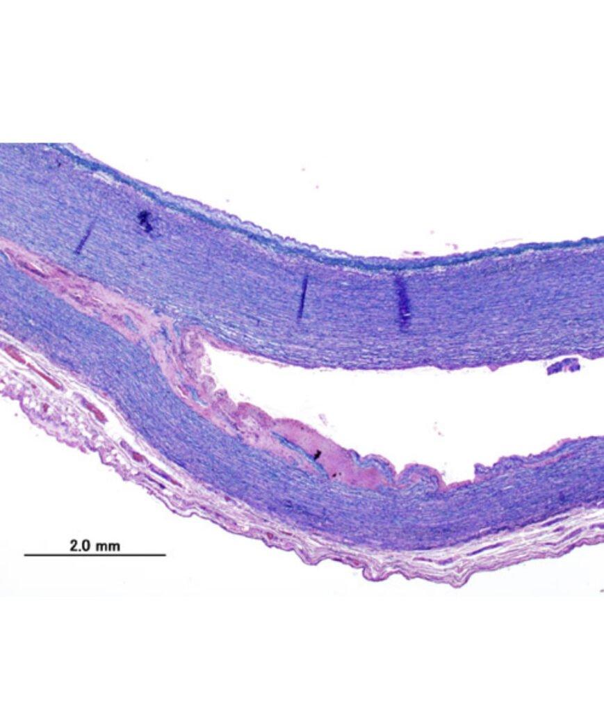 Obraz histopatologiczny tętniaka rozwarstwiającego aorty piersiowej, KGH, CC BY-SA 3.0